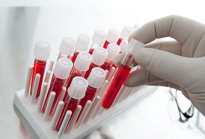 Анализ крови на поджелудочную железу