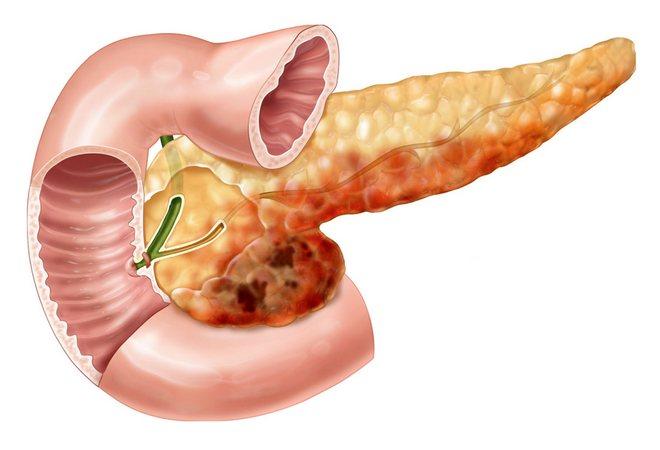 Некроз поджелудочной железы: гангрена, симптомы, прогнозы, смертность