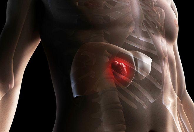 Заболеваний поджелудочной железы достаточно много. А профилактикой всех заболеваний поджелудочной железы является рациональное полноценное питание! Поджелудочная железа — одна