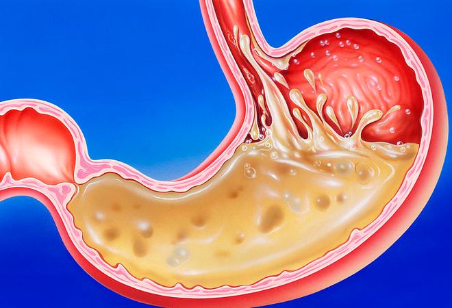 Гастрит с пониженной кислотностью: симптомы, лечение желудка, препараты