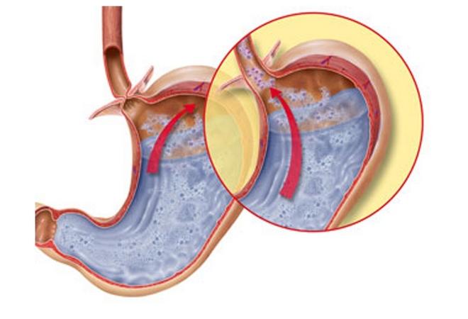 Билиарный рефлюкс гастрит: эзофагит, симптомы, что это такое, лечение