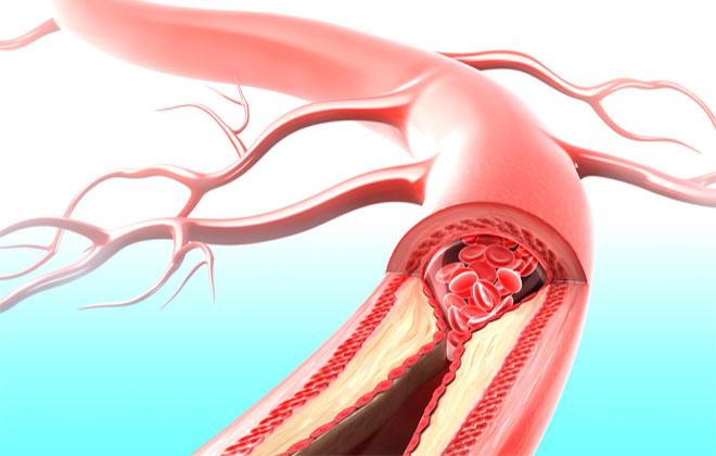 Болезнь сонных артерий