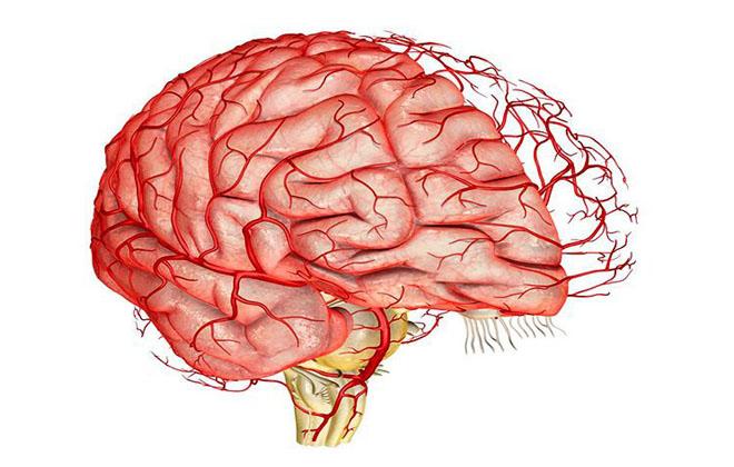 Дистония сосудов мозга
