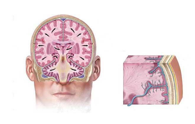 Отек мозговых тканей