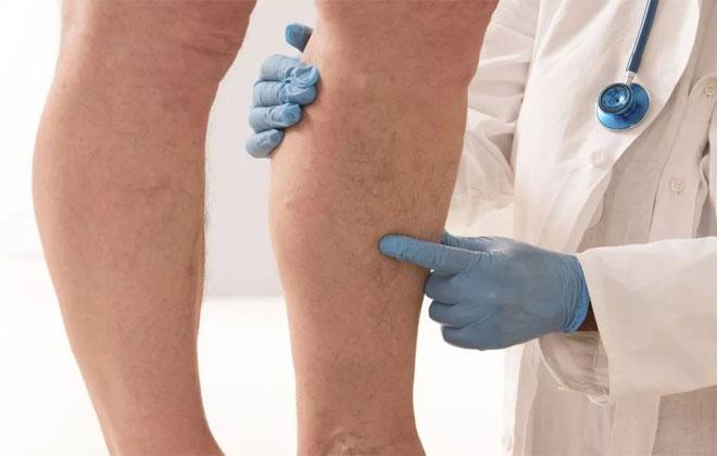 Парализованная нога