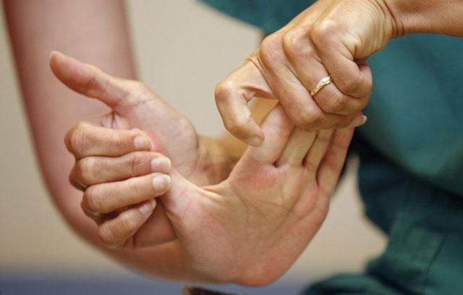 Парализованная рука