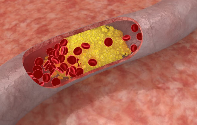 Повышение холестерина в крови