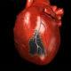 Как распознать симптомы и первые признаки (предвестники) инфаркта миокарда