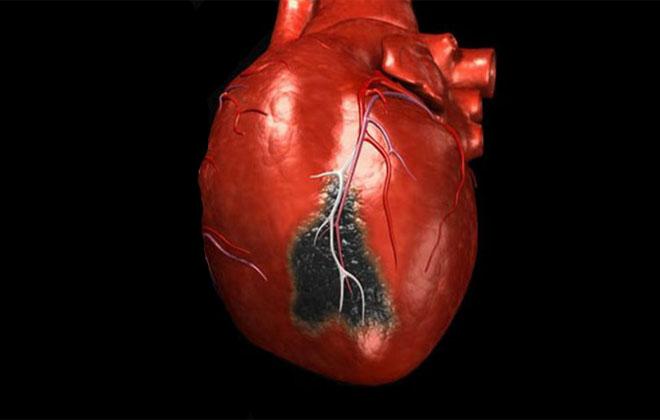 Серьезная болезнь сердца