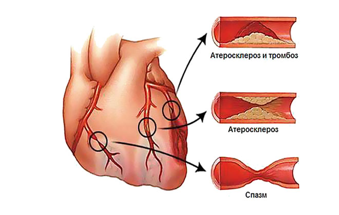 spazm koronarnoy arterii - Симптоми на микроинфаркт и първи признаци при жените