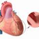 Причины развития трансмурального инфаркта миокарда и методы его лечения
