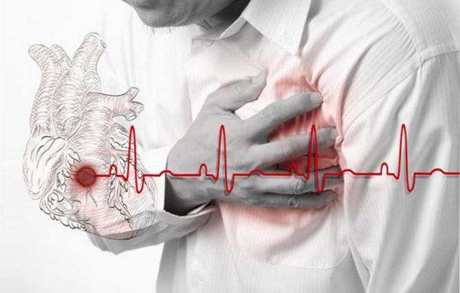 Вид инфаркта