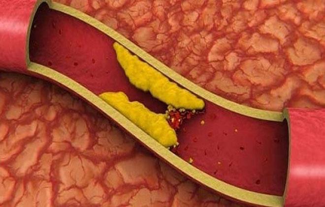 Артериальный тромбоз
