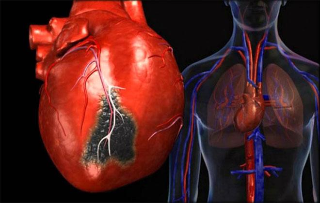 Атеросклероз сердца