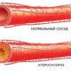 Симптомы и как лечить атеросклероз аорты и коронарных артерий (бляшки в сосудах) сердца