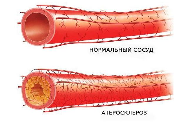 Болезнь аорты сердца