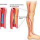 Как лечить атеросклероз сосудов (артерий) нижних конечностей (ног) и его симптомы