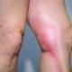 Как лечить тромбоз подколенной вены (артерии) и симптомы тромба коленного сустава
