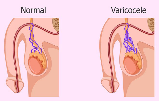 Болезнь варикоцеле