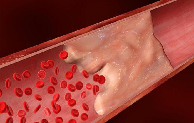 Формирования сгустков крови