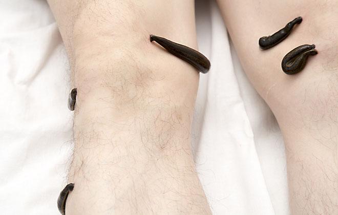 Гирудотерапия на ноги