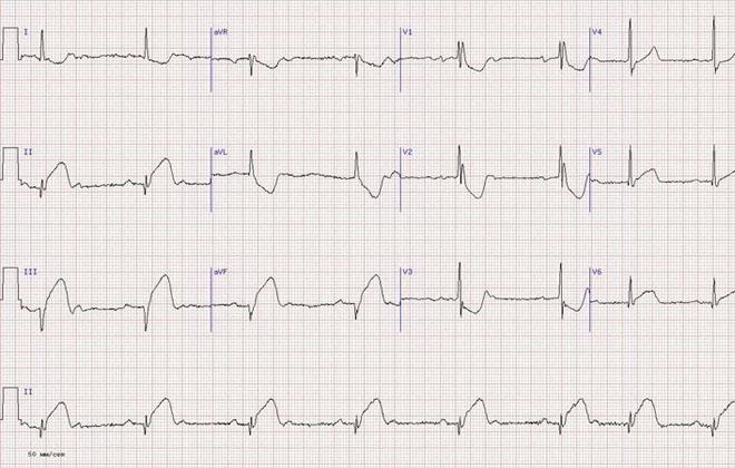 Инфаркт боковой