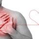 Классификация ранних и поздних осложнений инфаркта миокарда у мужчин и женщин