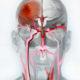 Последствия обширного ишемического инсульта правого полушария головного мозга и какие шансы выжить