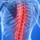 Симптомы и продолжительность лечения ишемического (спинального) инсульта спинного мозга (позвоночника)