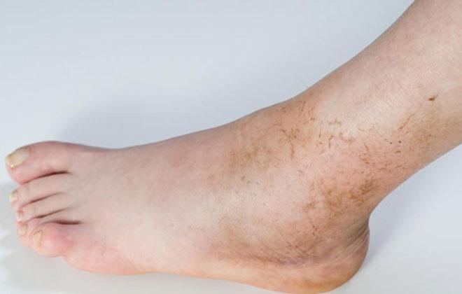 Изменение цвета кожных покровов ног