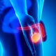 Какие признаки варикоцеле на УЗИ (ультразвуковой диагностике)