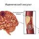 Какие последствия обширного ишемического инсульта левой стороны (левого полушария) головного мозга (левосторонний) и прогноз сколько живут после него