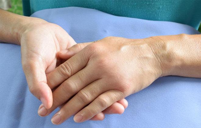Почему отекает рука после инсульта