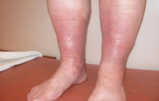Отеки ног при варикозе лечение как избавиться снять отек что делать