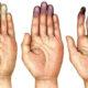 Симптомы и лечение облитерирующего тромбангиита нижних конечностей (болезнь Бюргера)