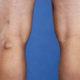 Как лечить варикозное расширение вен (варикоз) коленного сустава и почему болят (набухли) сосуды под коленями сзади
