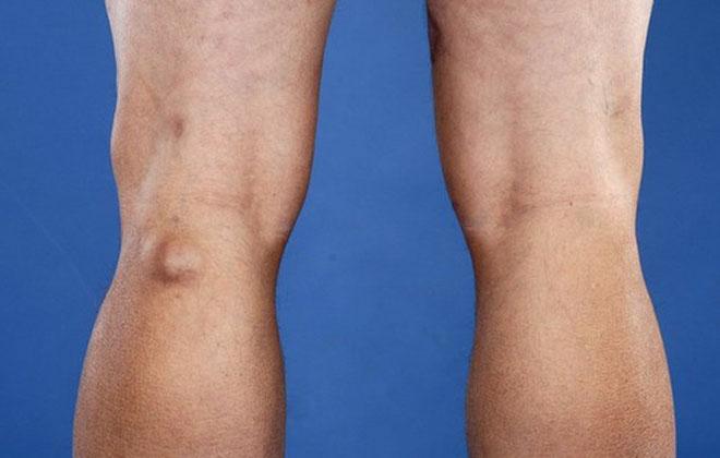 Болит вена под коленом сзади: что делать, лечение