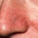 Как убрать и вылечить купероз (сосудистые звездочки) на крыльях носа