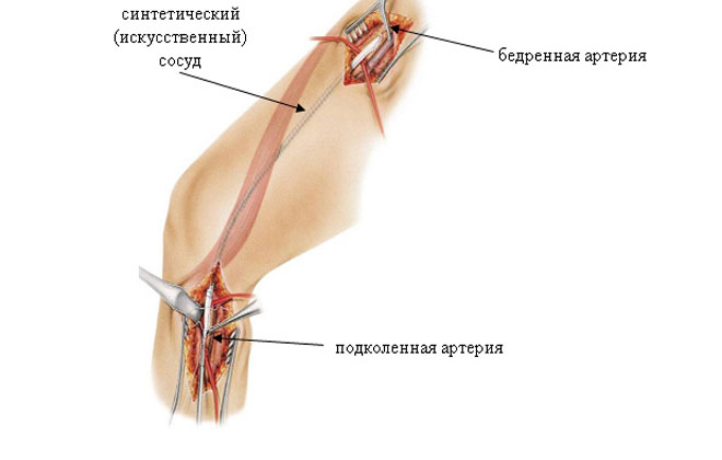 Проблемы с артерией бедра