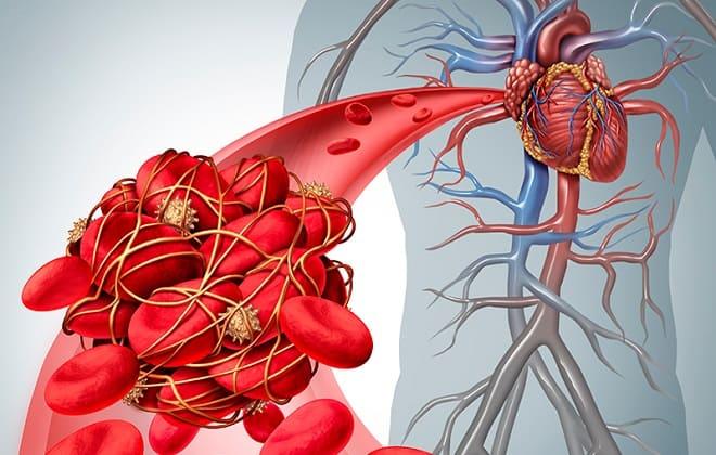 Операция на сердце удаление тромба