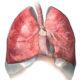 Как лечить аортосклероз легких и симптомы атеросклероза (холестериновых бляшек)