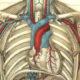 Начальные проявления и лечение стенозирующего атеросклероза БЦА (внечерепных отделов брахиоцефальных артерий)