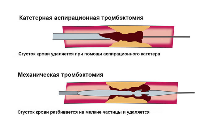 Реолитическая тромбэктомия