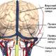 Симптомы и лечение тромбоза венозного (поперечного) синуса головного мозга
