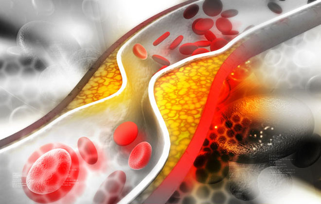 Снижение уровня холестерина