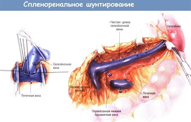 Спленоренальное шунтирование