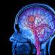 Последствия и лечение лакунарного ишемического инсульта (инфаркта) головного мозга