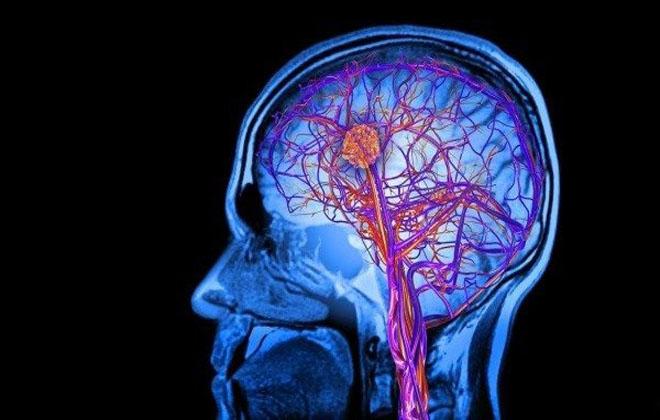 Лакунарный инфаркт продолговатого мозга