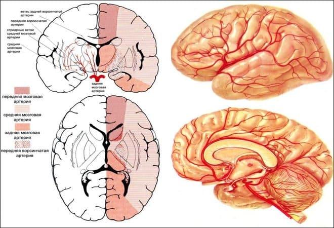 Трепанация черепа при инсульте