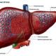Как лечить тромбоз воротной вены печени и его симптомы